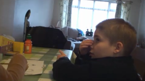 <p>In this clip you will see Benjamin picking the skin on his fingers and nose</p>